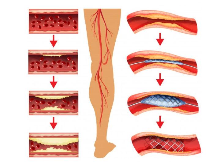 revascularizarea-piciorului-diabetic