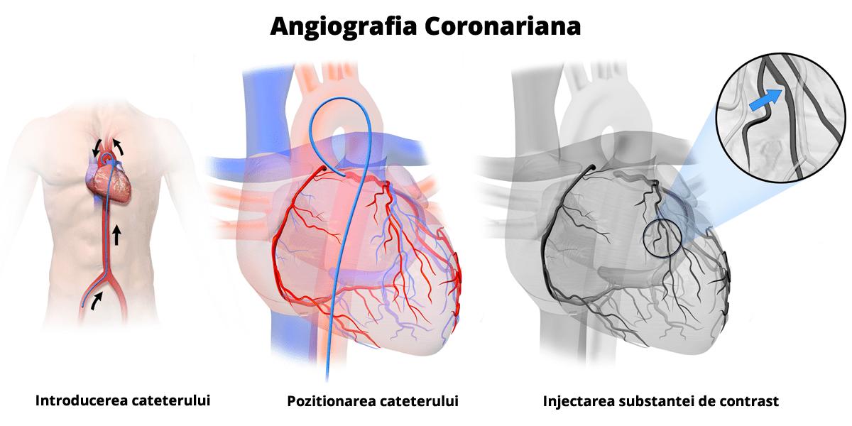 coronarografie-angiografie-coronariana
